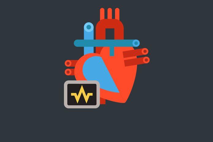 image of heart shoqing novel drug targeting atrial fibrillation