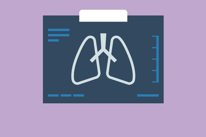 Image of lungs to show Keytruda approved by NICE