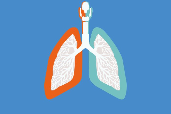 graphic illustration of lungs to show UK and South Korea collaborate on severe asthma