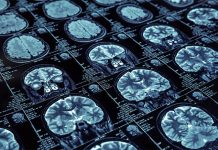 Brain scan image: Detecting and managing atrial fibrillation