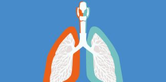 Graphic image of lungs to show New treatment option for extensive-stage small-cell lung cancer approved