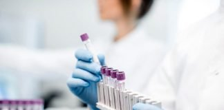 NHS launches world's largest trial of blood test detecting 50 types of cancer